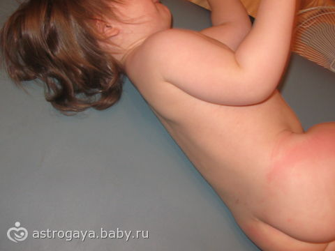 аллергия на молочку симптомы