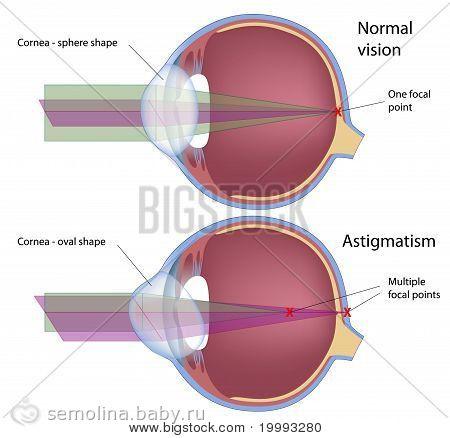 Дальнозоркость это очки с плюсом или минусом